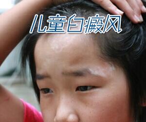 儿童白癜风有哪些常见的诊断方法