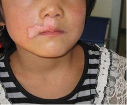 北京治疗白癜风专科医院:女性白癜风怎么治疗