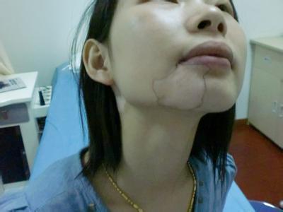 北京治疗白癜风医院:女性白癜风有哪些原因
